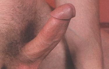 posle-seksa-nadriv-na-chlene